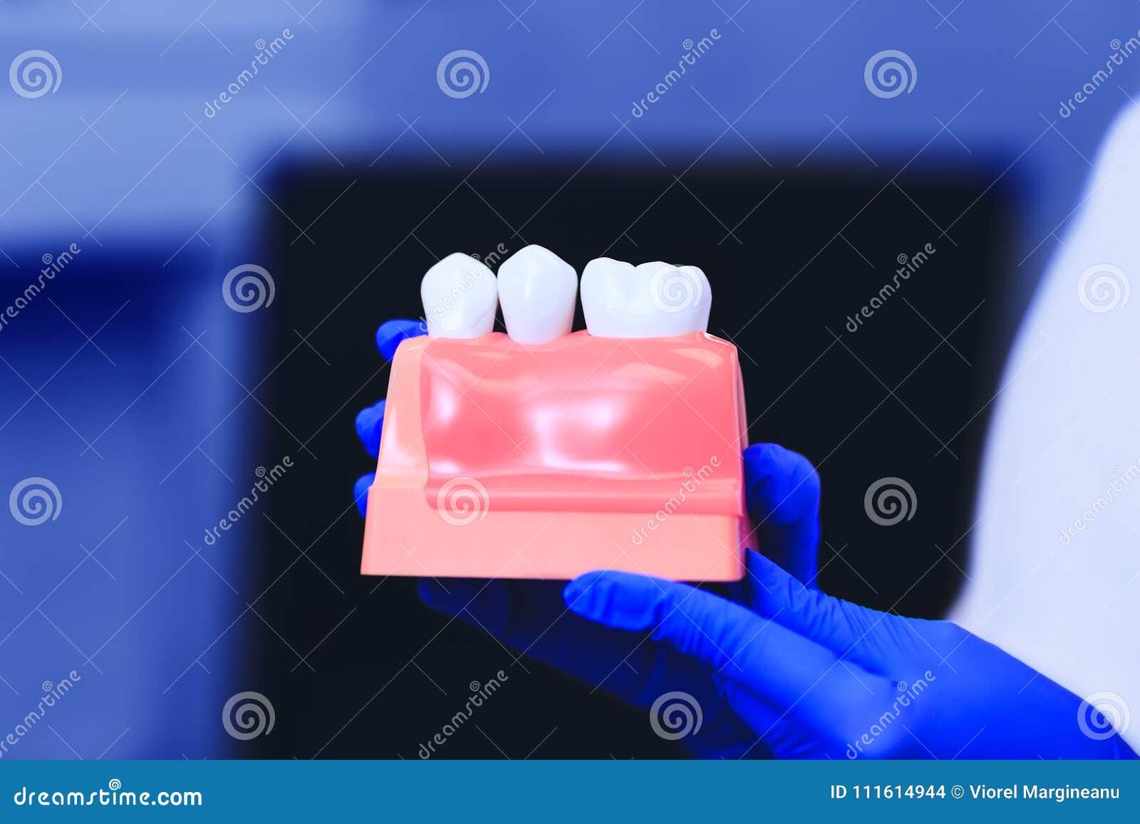 Modèle des dents avec l implant dentaire dans les mains du vrai docteur