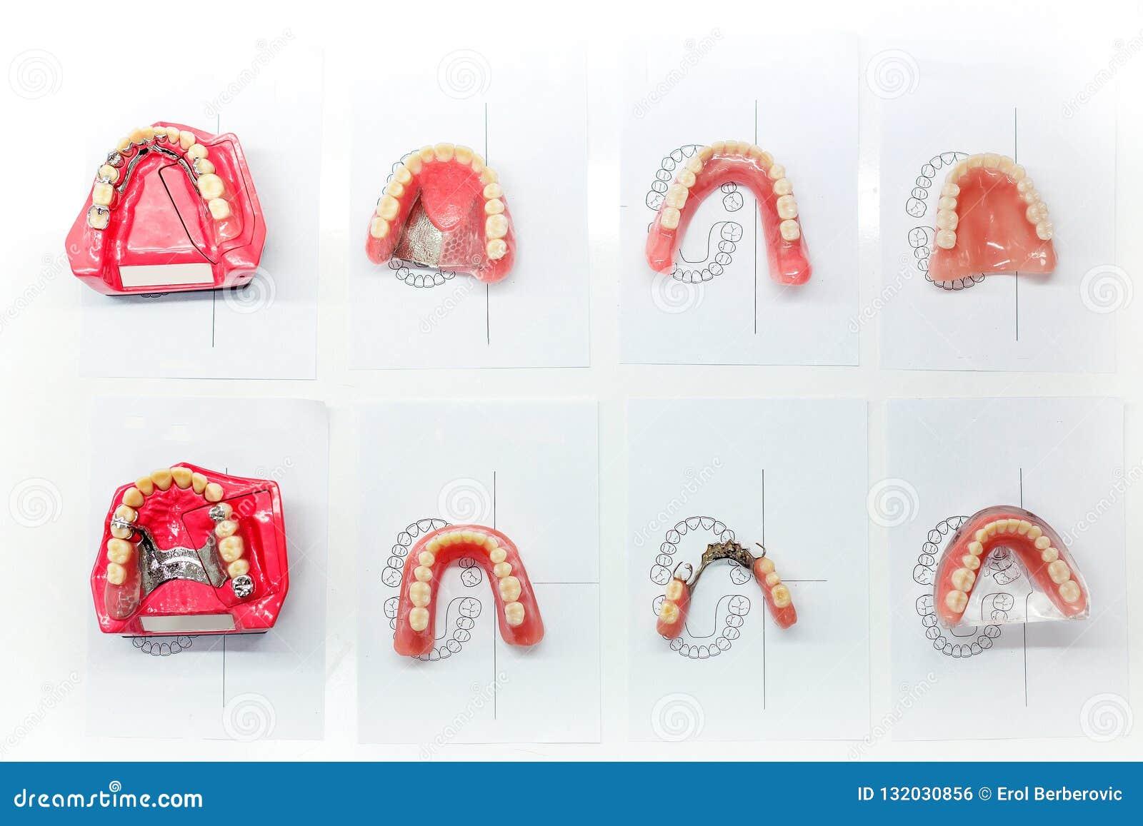 Modellen van tandkroon