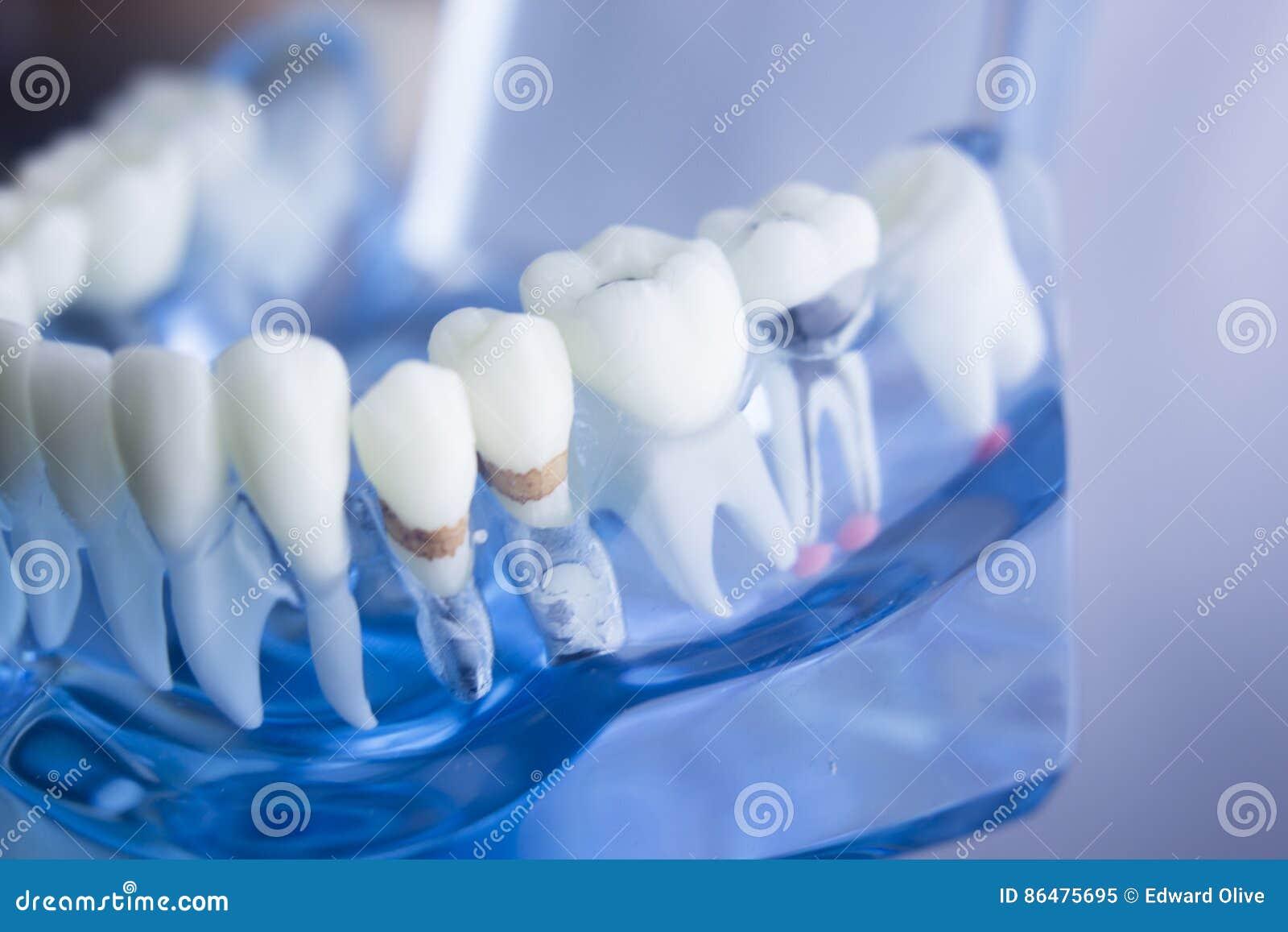 Modello dentario della placca dei denti