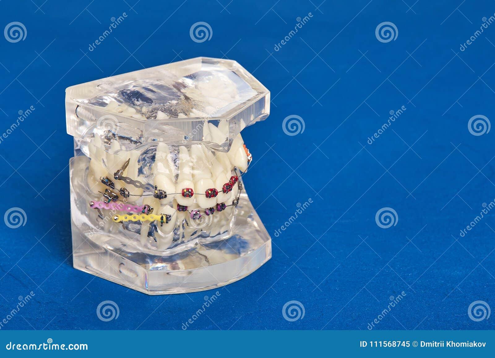 Modello dentario ortodontico dei denti umani con gli impianti, ganci dentari