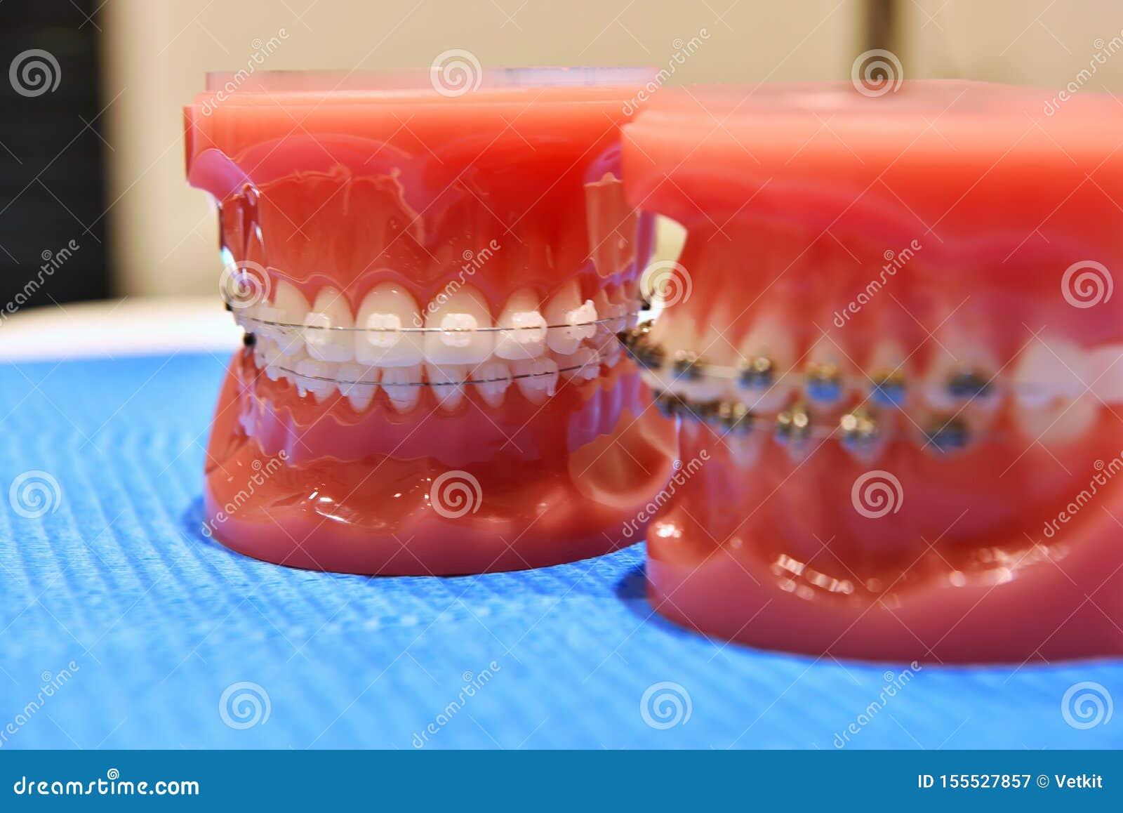 Modelo de los dientes de apoyos ortodónticos