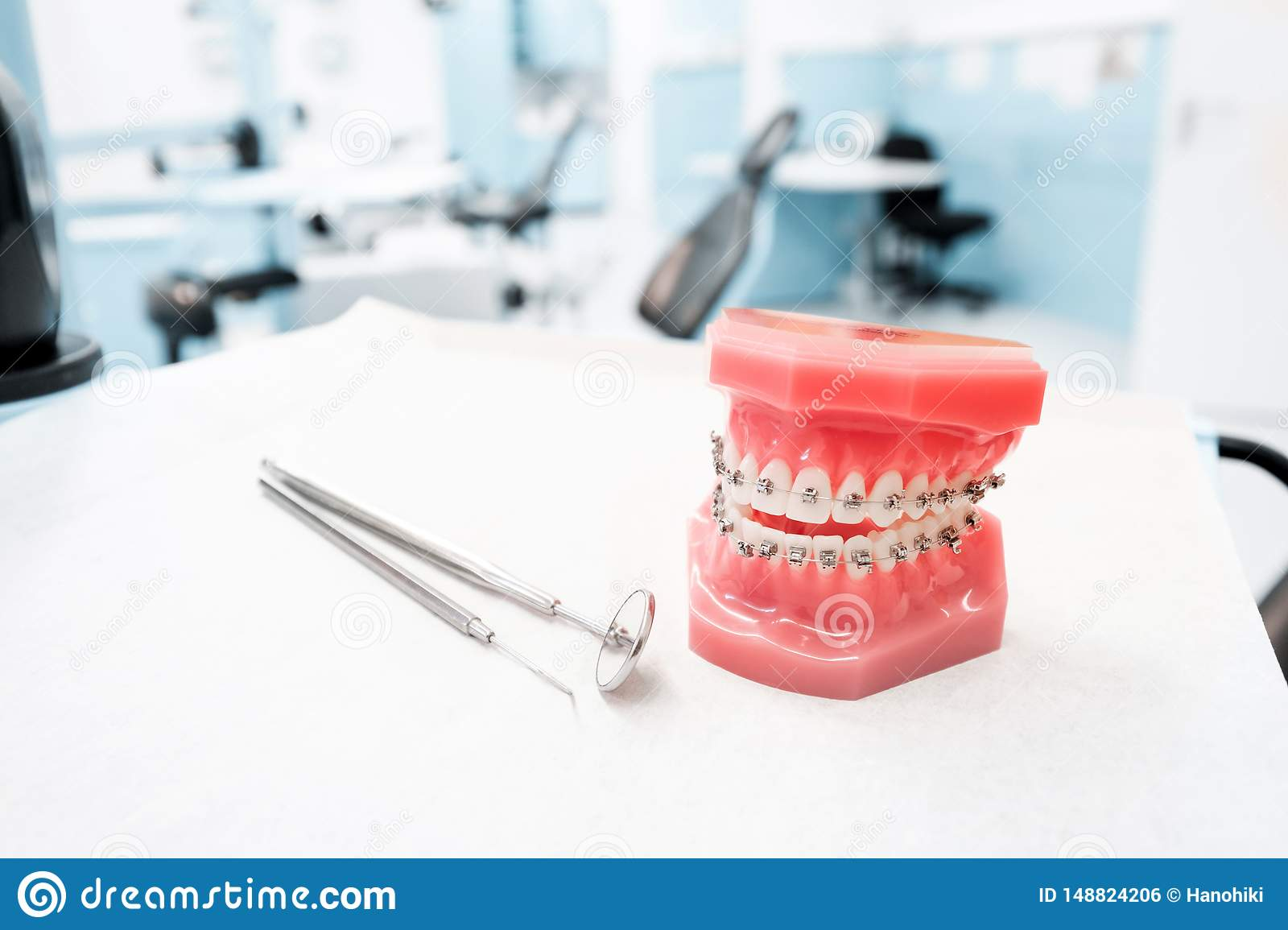Modelo dental con los apoyos - modelo dental ortodóntico de los dientes con los apoyos dentales en clínica del dentista
