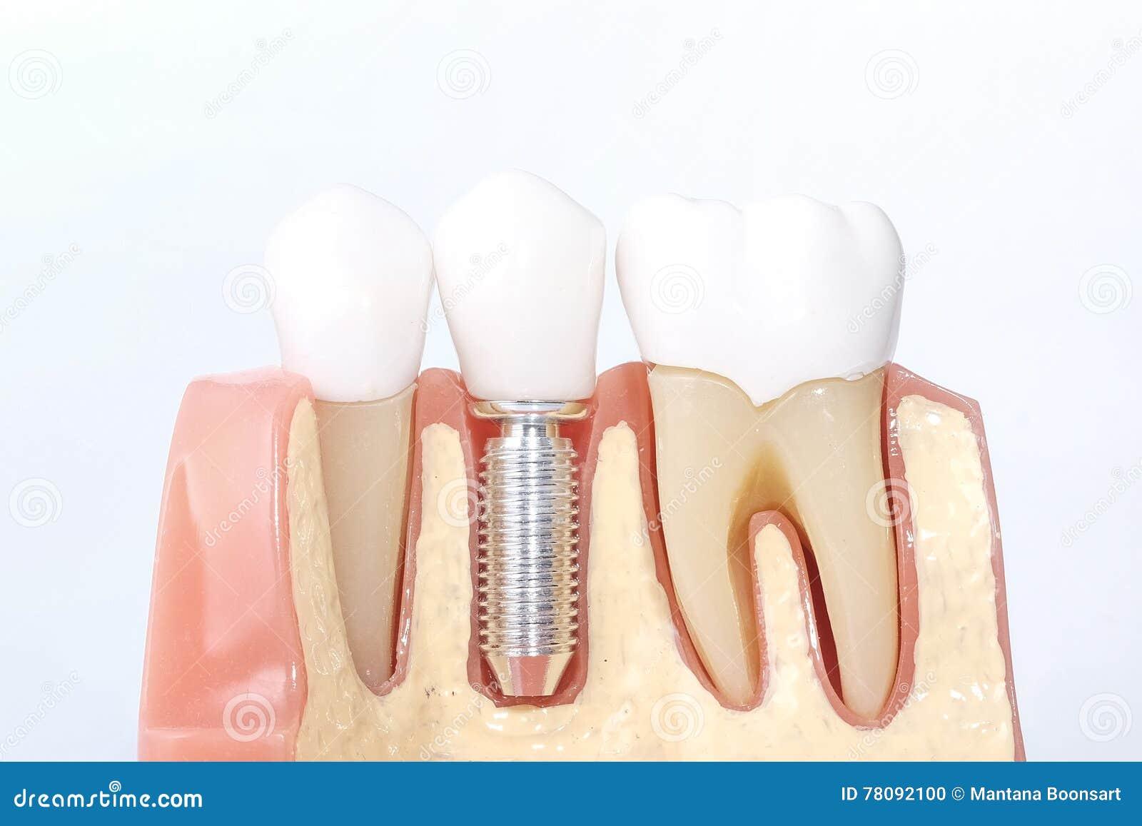 Modelo dental genérico dos dentes