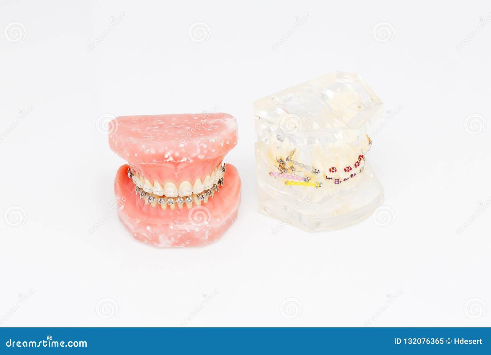Modelo dental ortodôntico dos dentes humanos com implantes, cintas dentais