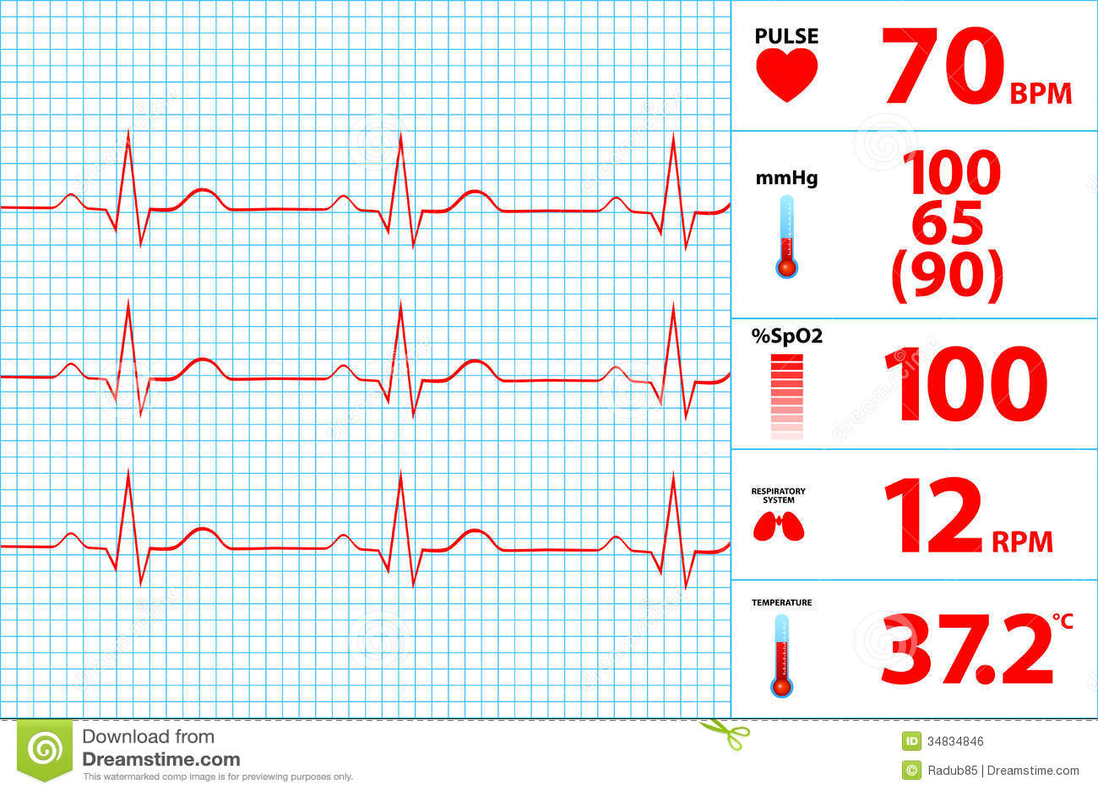 modern electrocardiogram monitor display stock vector ekg vector leads ekg vector srca objasnjenje