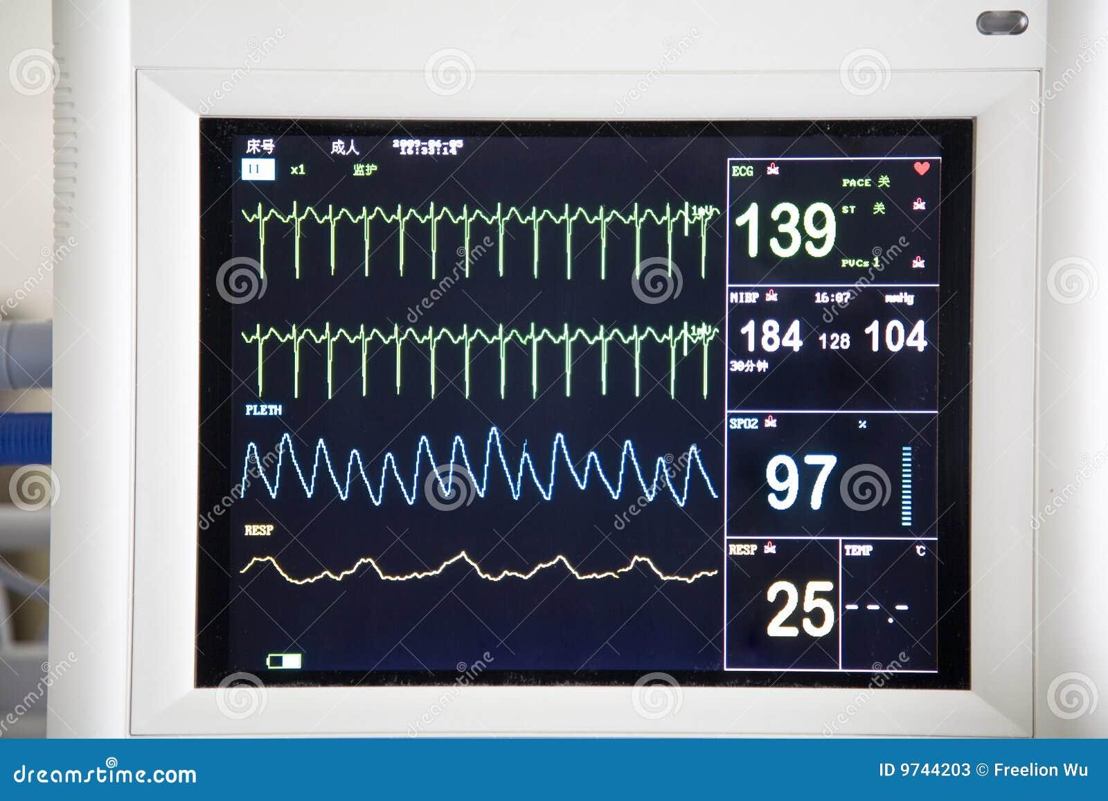 Monitor del hospital