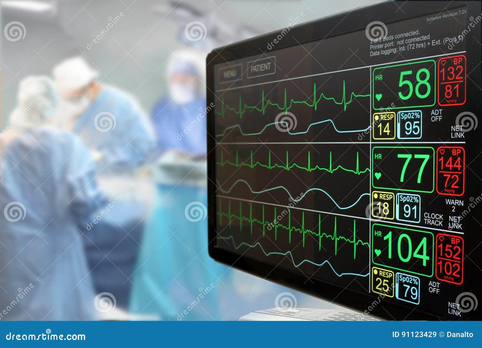 Monitor LCD de la Unidad de Cuidados Intensivos ICU