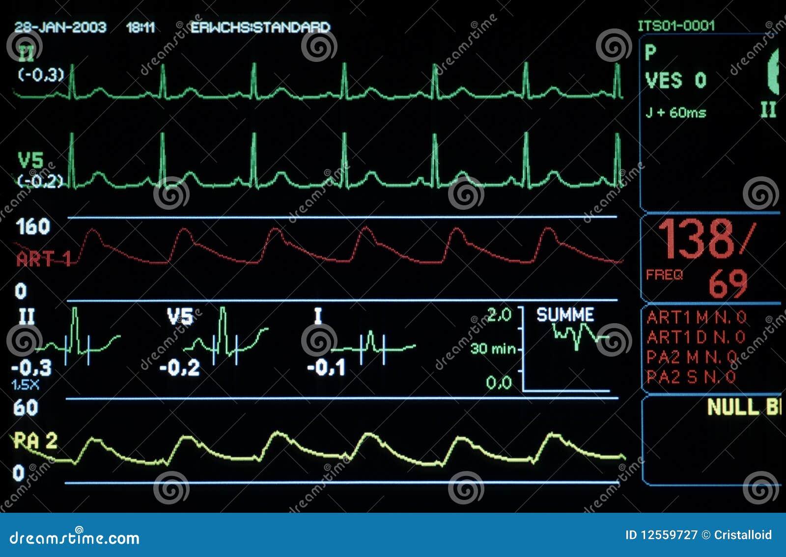 Monitor médico