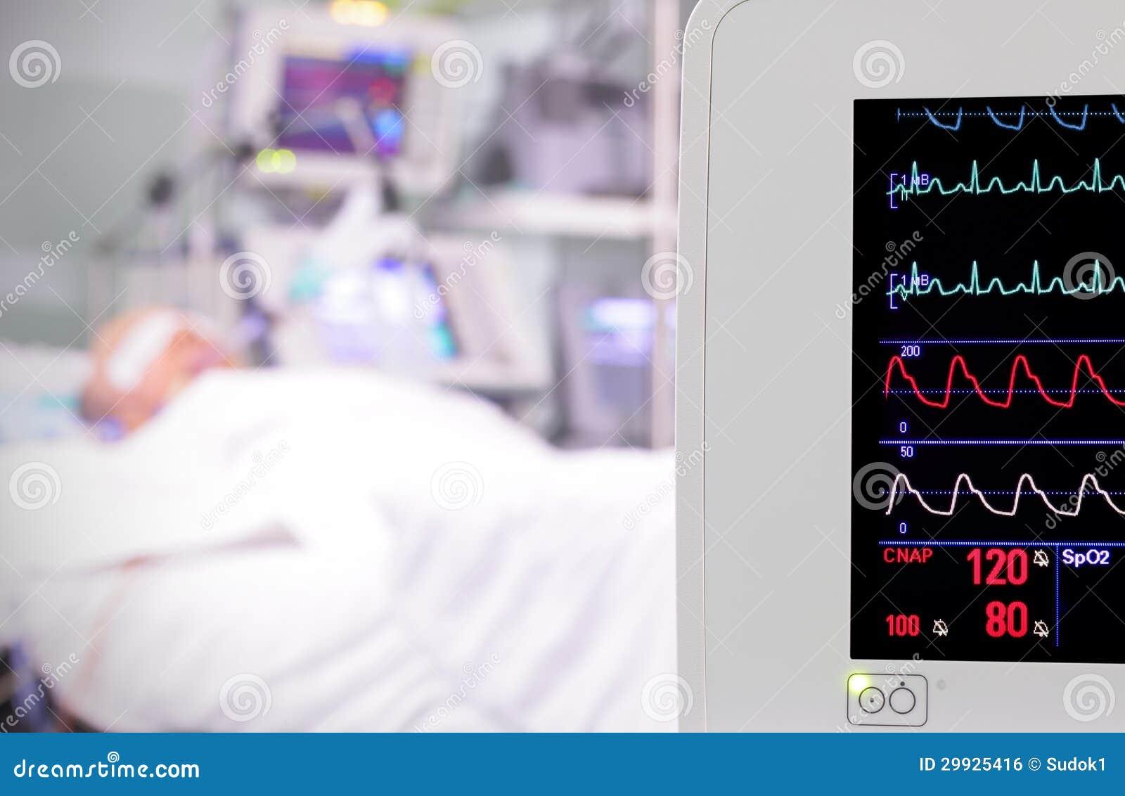 Monitor nella stanza. unità di cure intensive.
