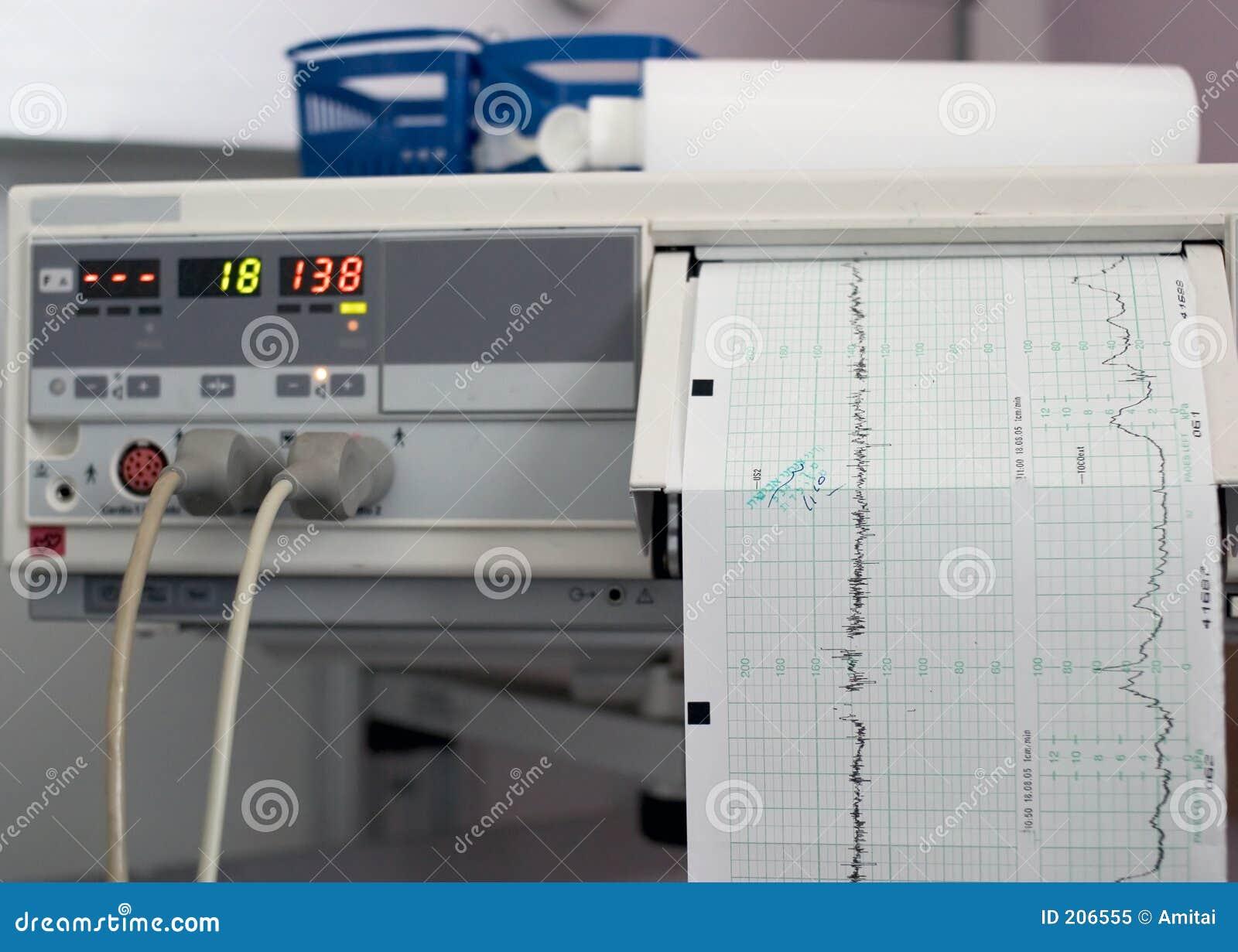 Monitor przedurodzeniowej
