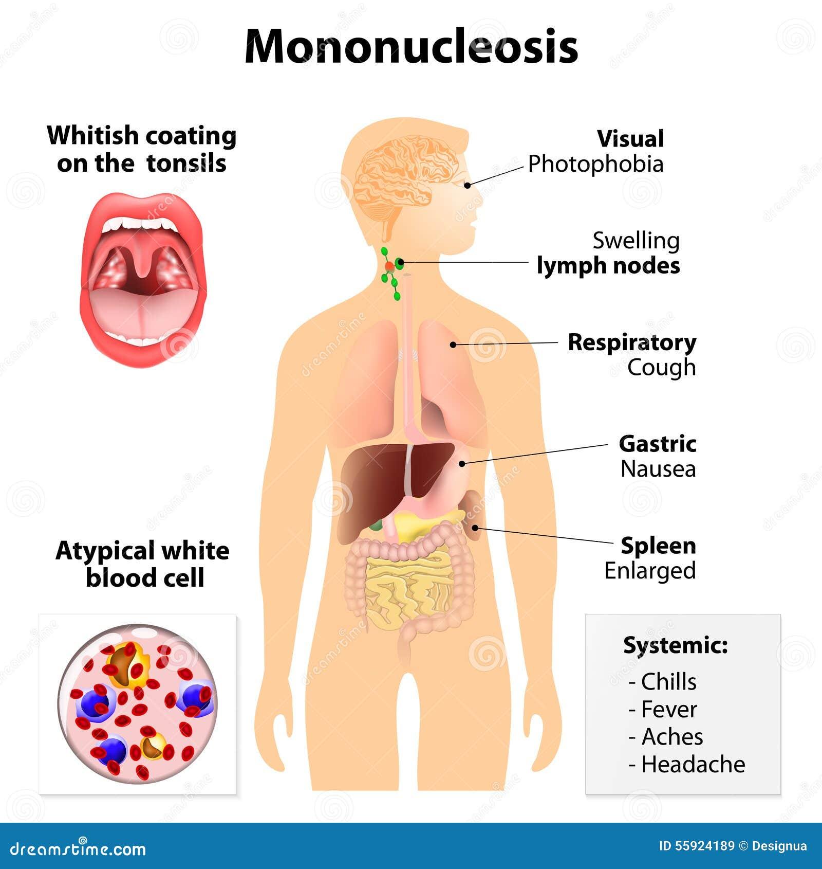 Anémie mal de gorge
