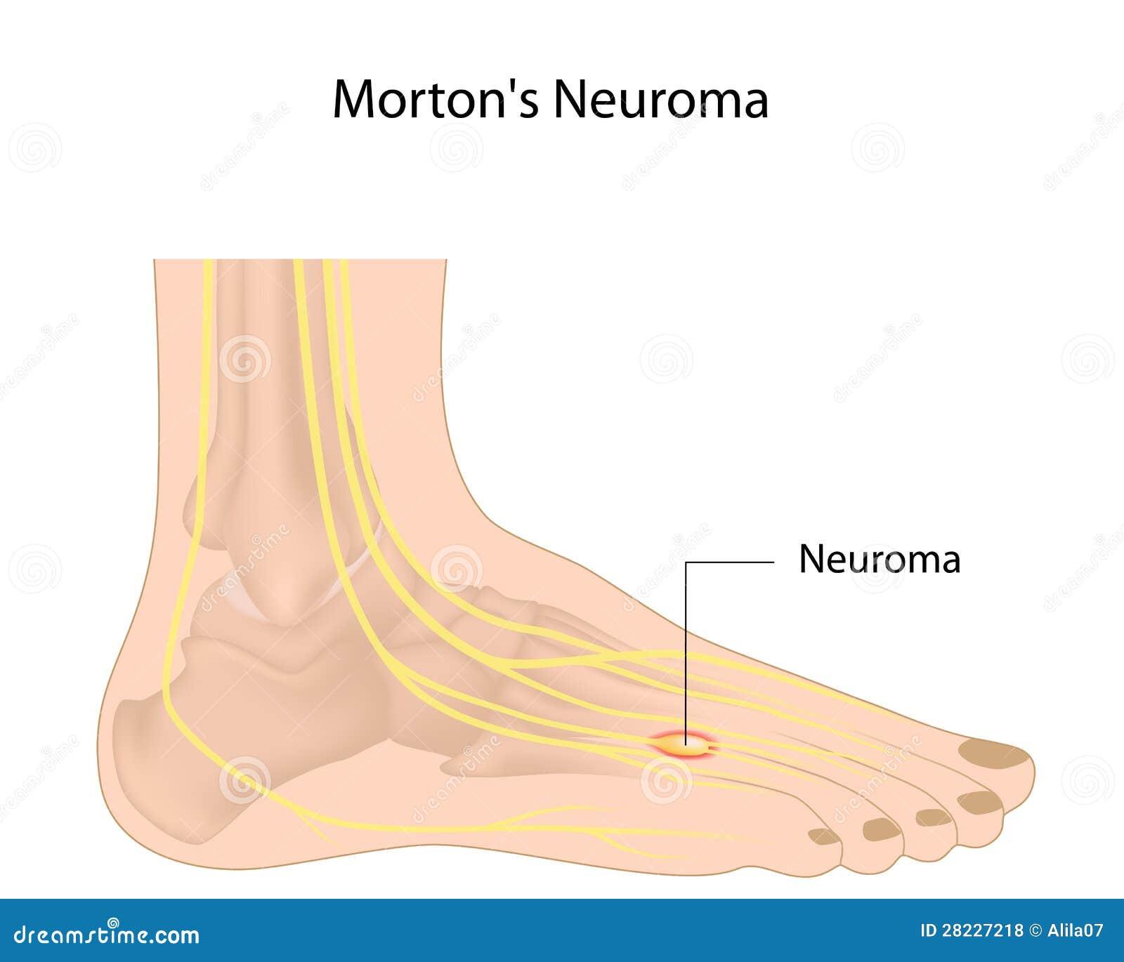 Morton s neuroma