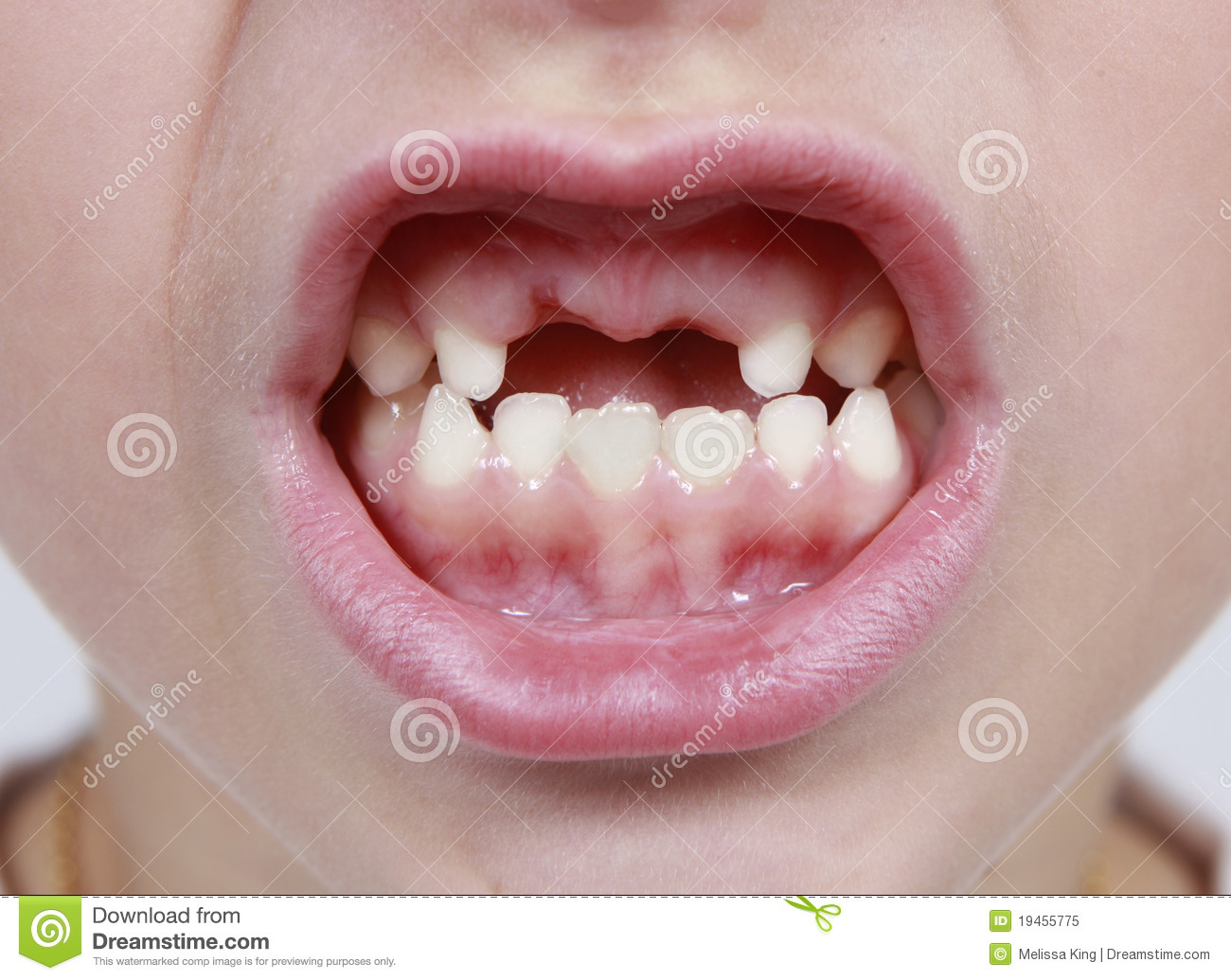 Mouth Missing Teeth Royalty Free Stock Photo - Image: 19455775
