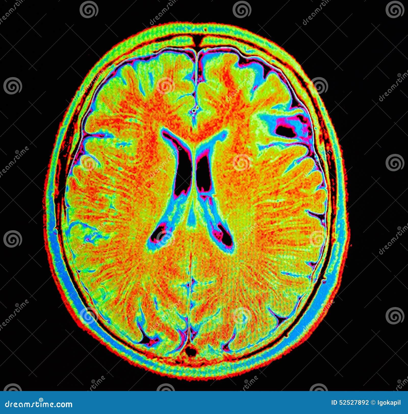 Movimiento Del Cerebro De Mri Foto de archivo - Imagen de confusión ...