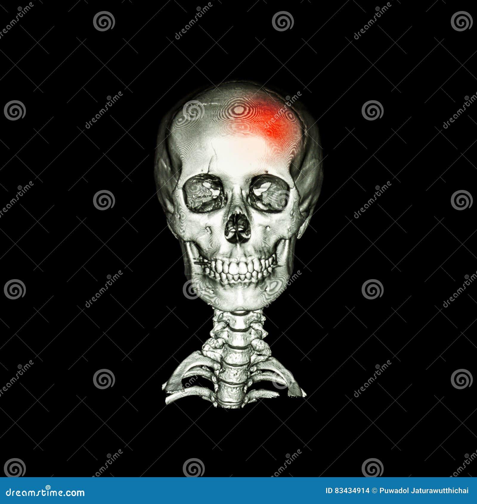 Movimiento Exploración Del CT Con La Imagen 3D Del Cráneo Humano Y ...