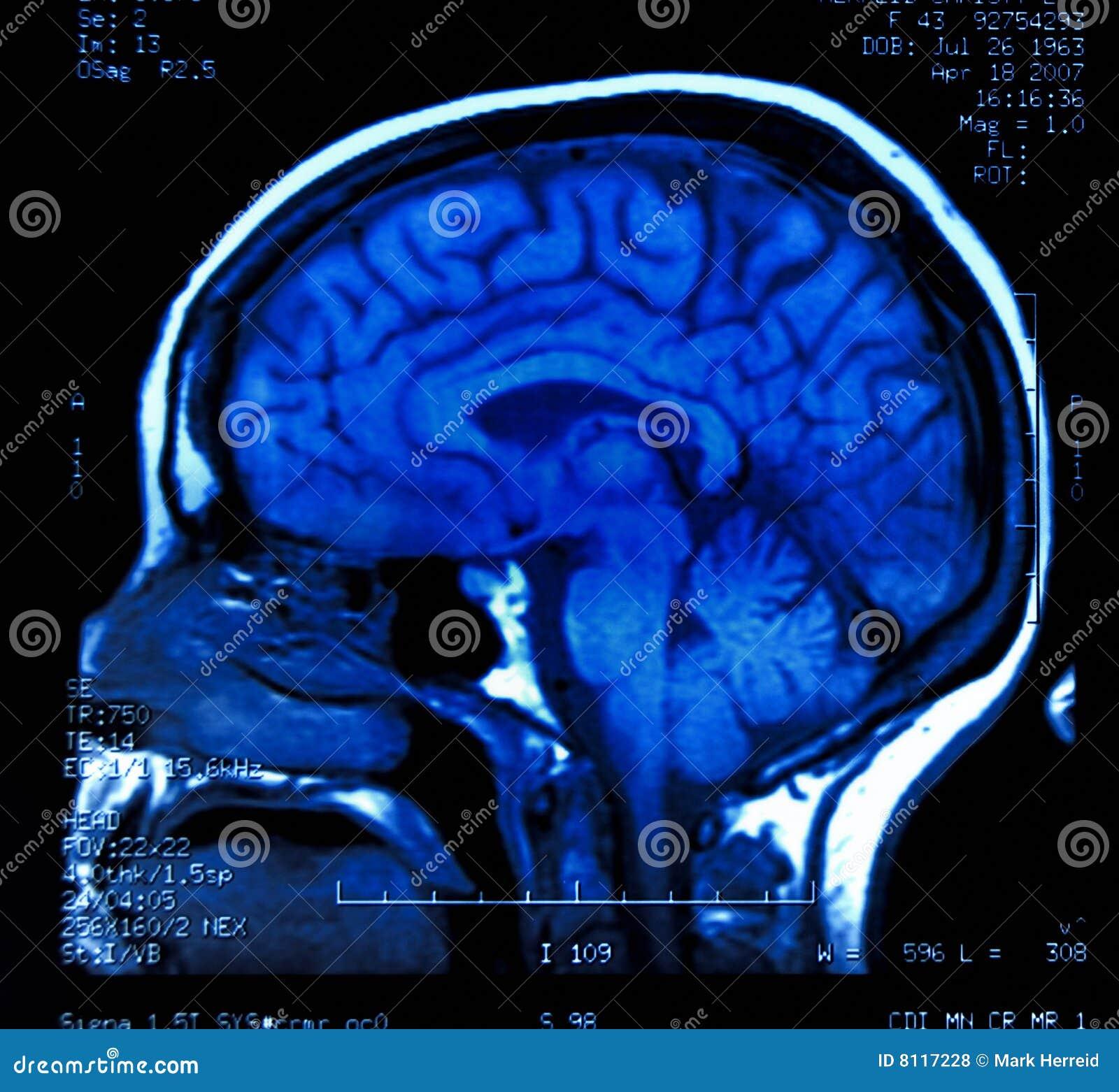 Mri мозга