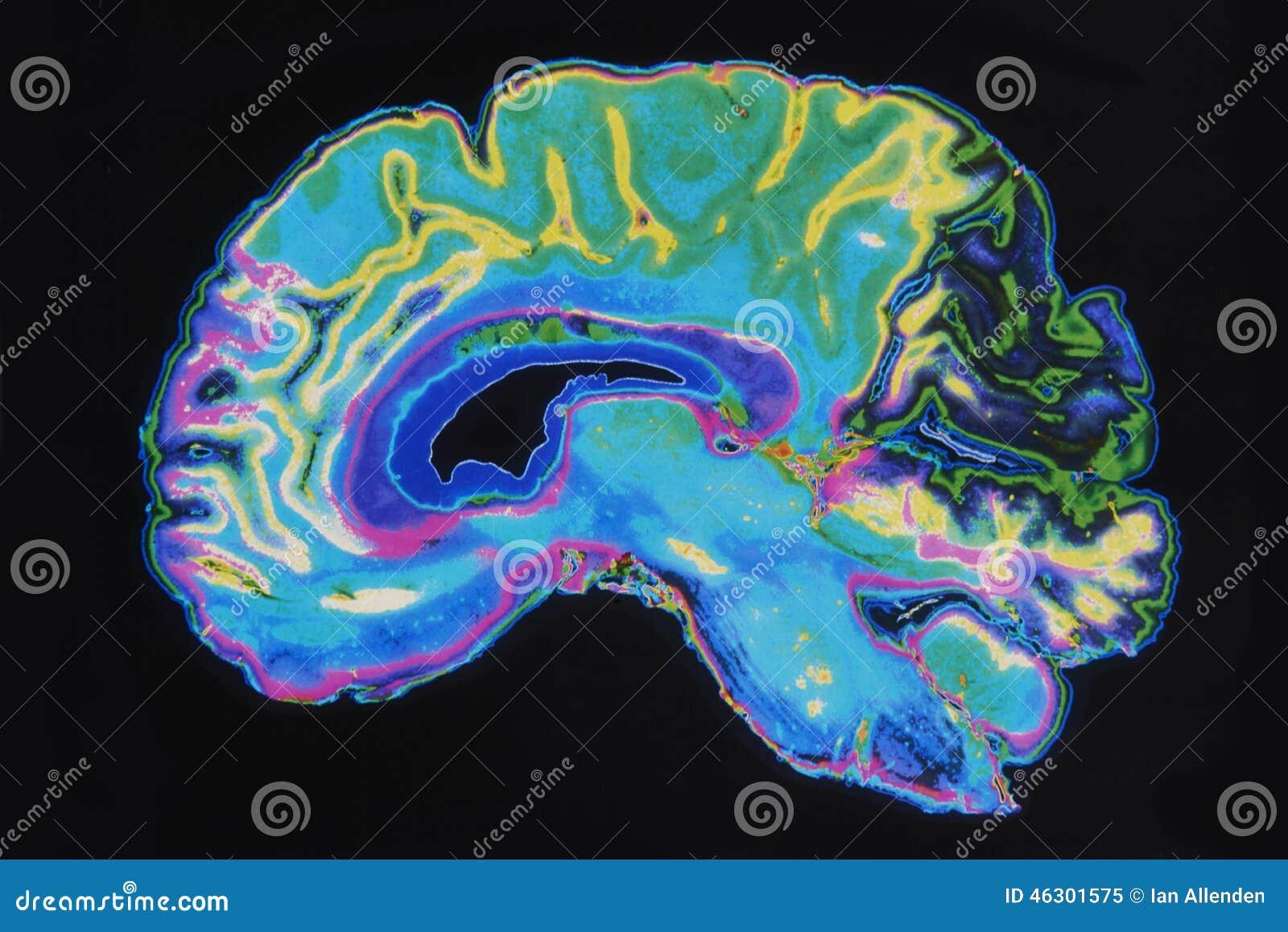 MRI-Beeld Brain On Black Background