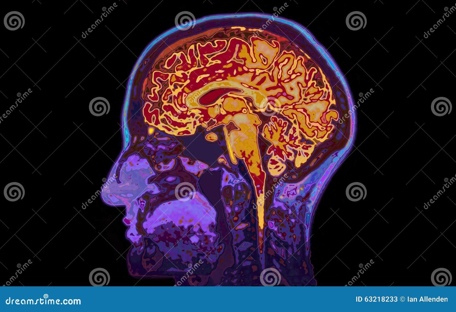 MRI-bild av den Head visninghjärnan