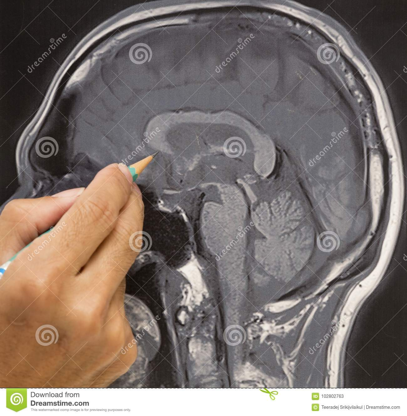 MRI Brain Picture And Doctor`s Hand Stock Image - Image of resonance ...