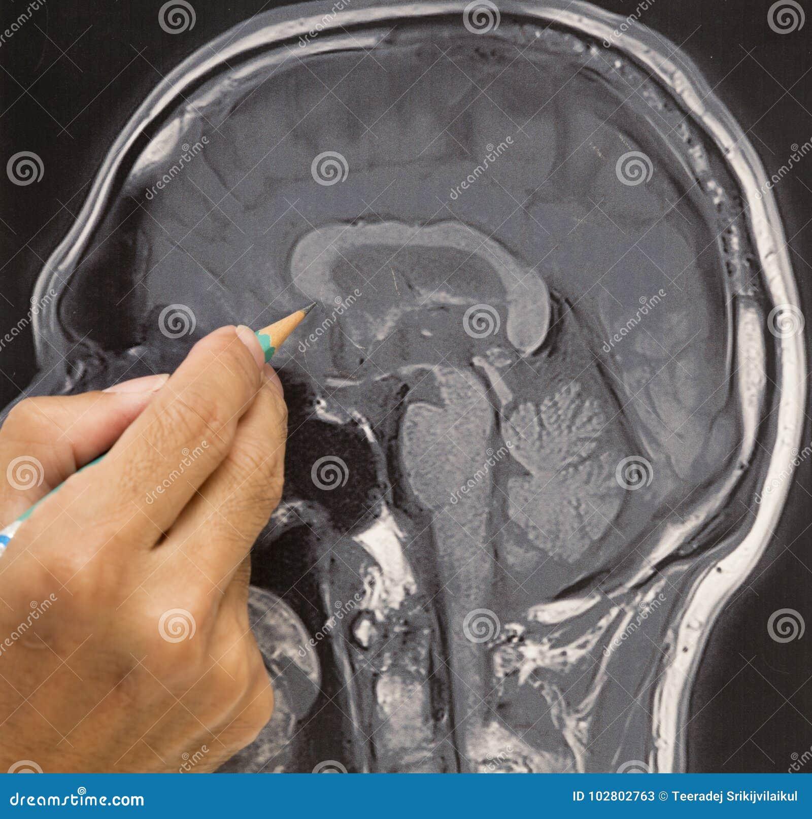 Mri Brain Picture And Doctors Hand Stock Image Image Of Resonance