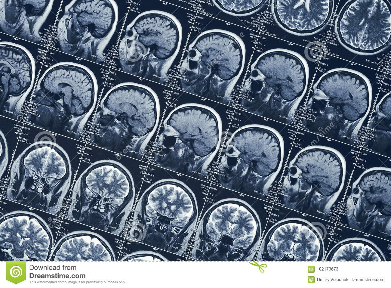 MRI brain scan or x-ray neurology human head skull tomography test