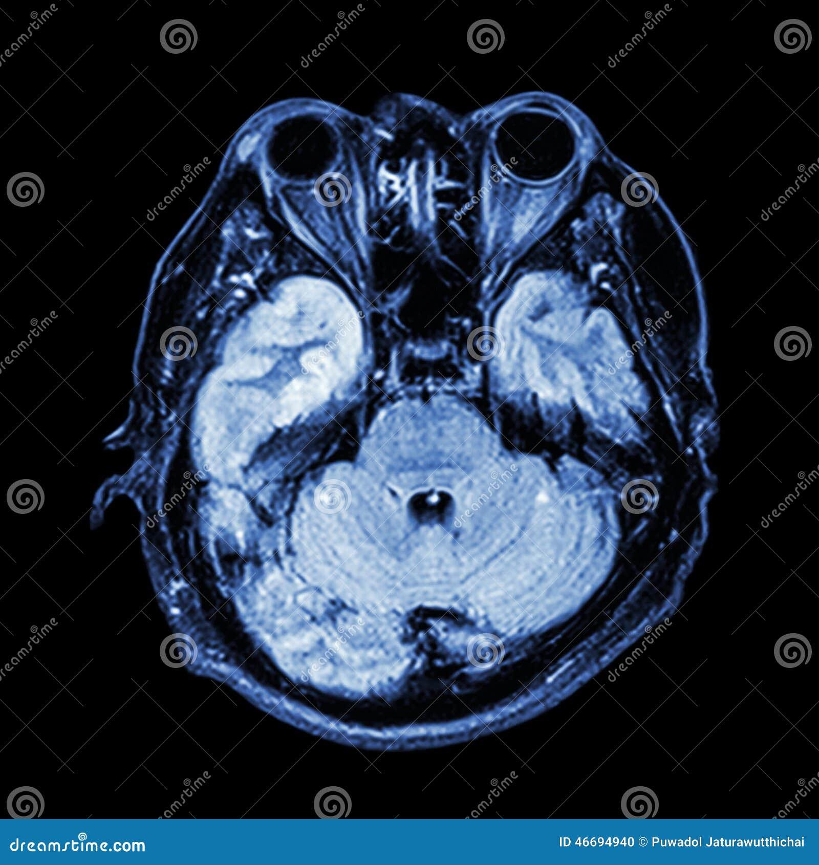 stem,eye,ethmoid sinus