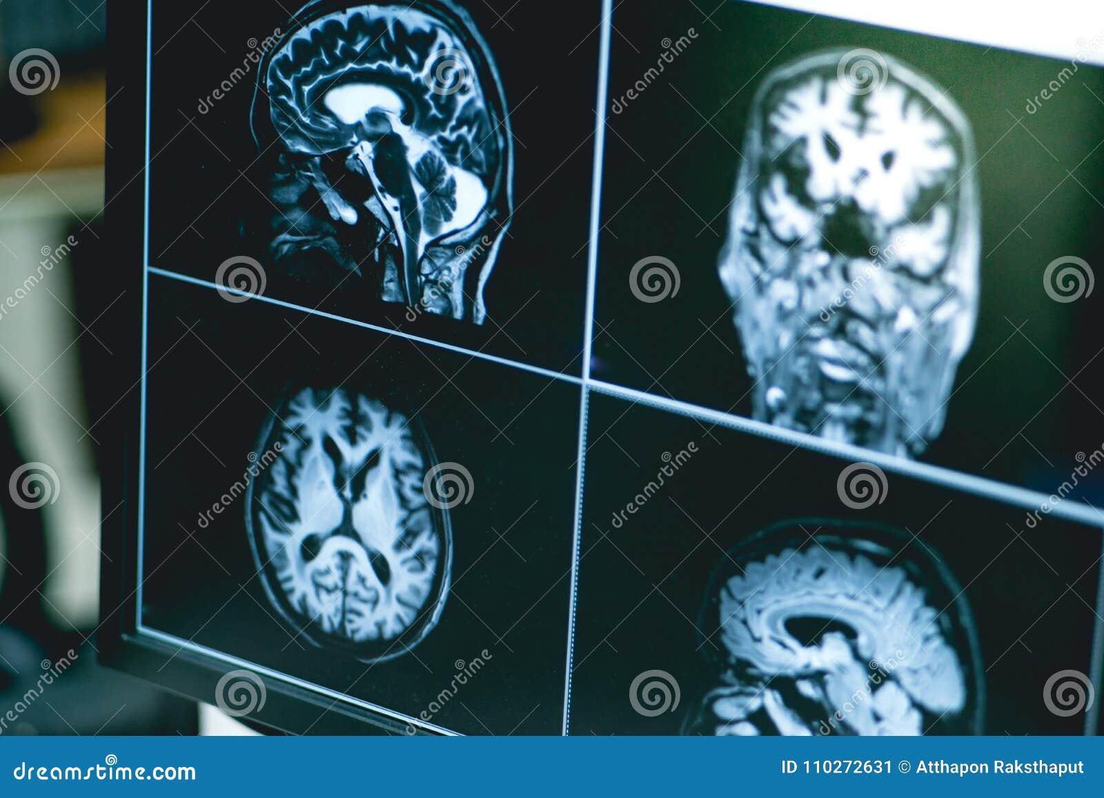 MRI Brian Del Paciente De La Demencia Imagen de archivo - Imagen de ...