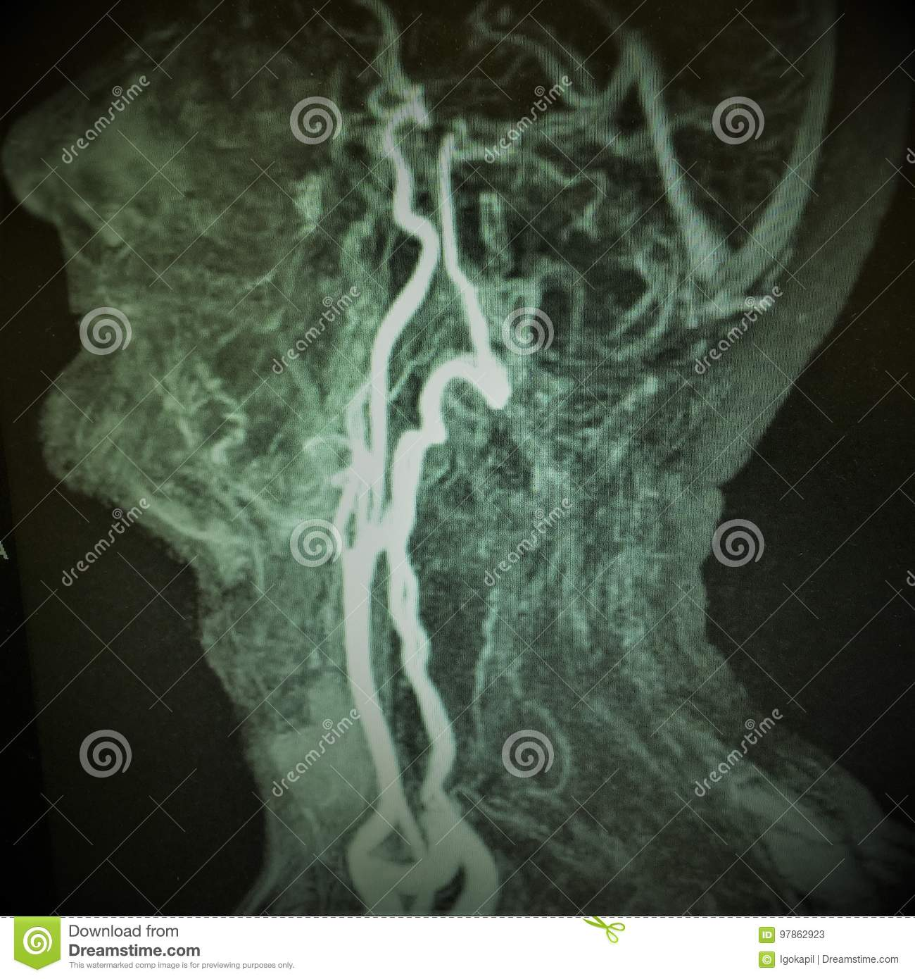 Mri Carotid Artery Complete Occlusion Stock Image Image Of Medical