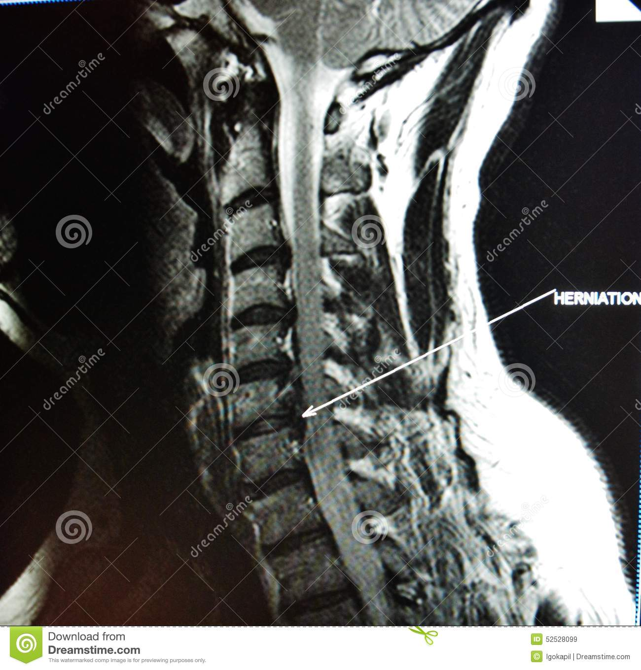 Mri of cervical spine stenosis stock photo image of colorful mri of cervical spine stenosis royalty free stock images ccuart Image collections