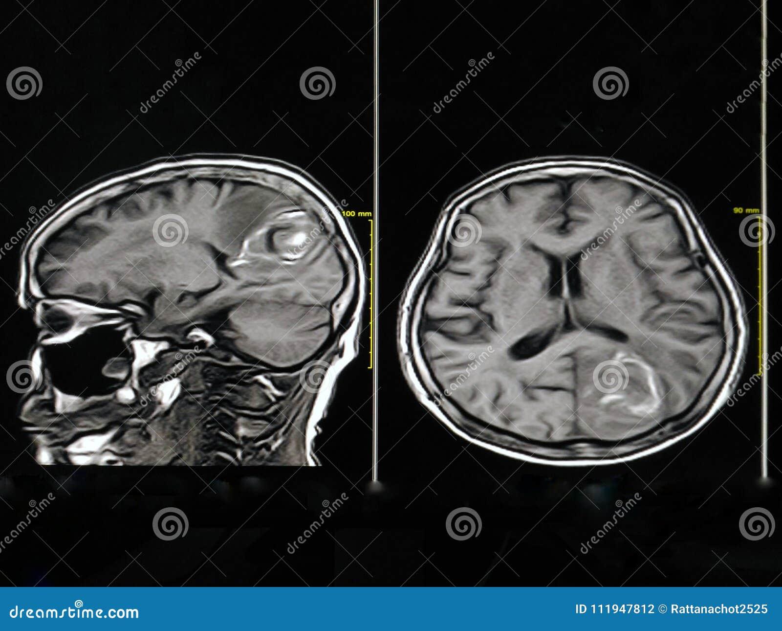 Groß Mri Anatomie Des Gehirns Fotos - Anatomie Von Menschlichen ...