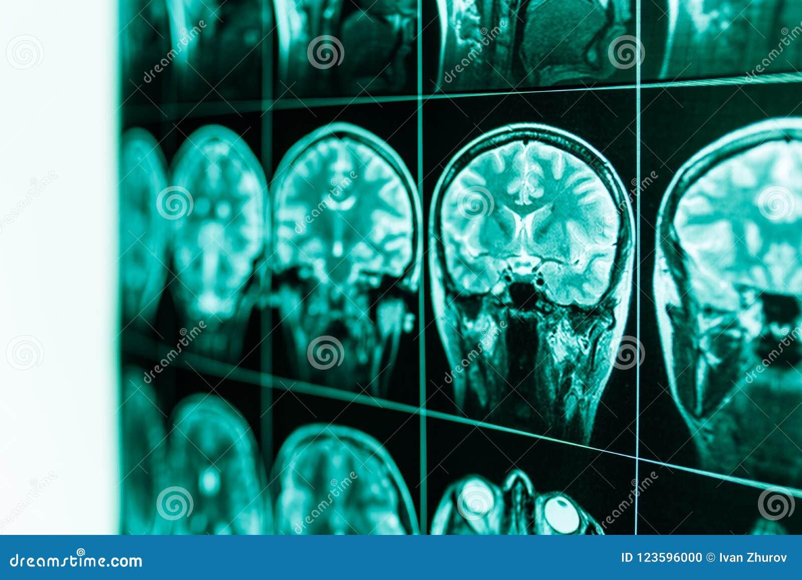 MRI of the human brain and brain in defocus