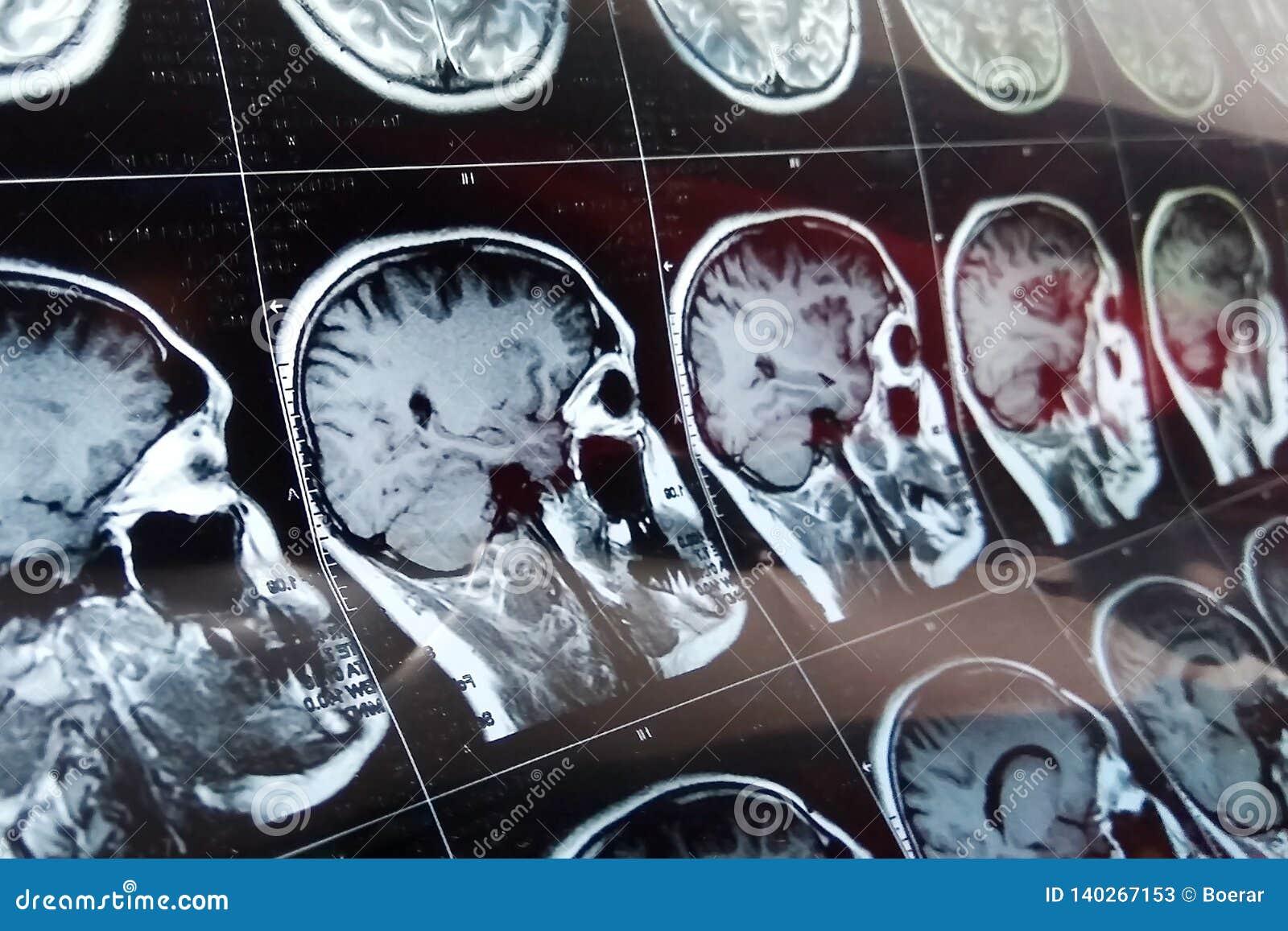 MRI-huvudbildläsning på blå färg för mörk bakgrund Röntgenstrålemedicin och läkarbehandlingbegrepp