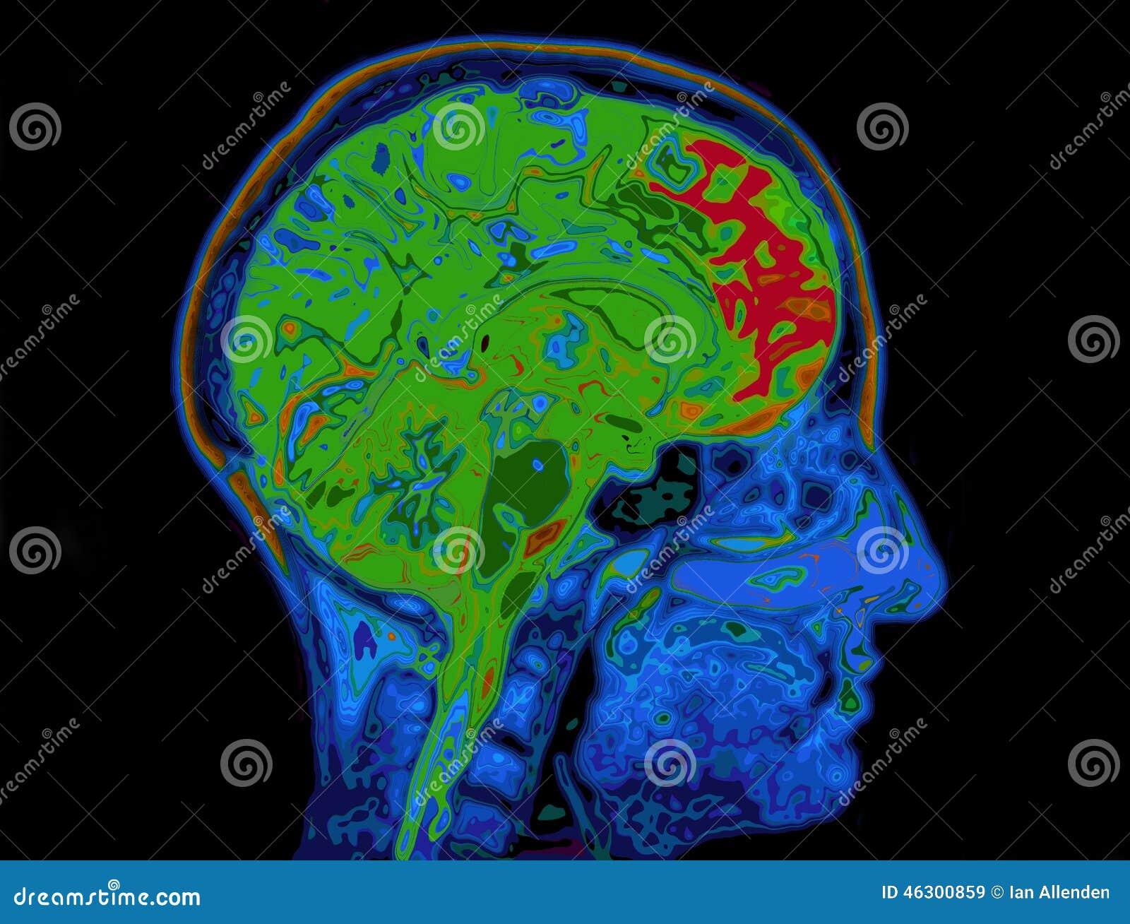 MRI Image Of Head Showing Brain