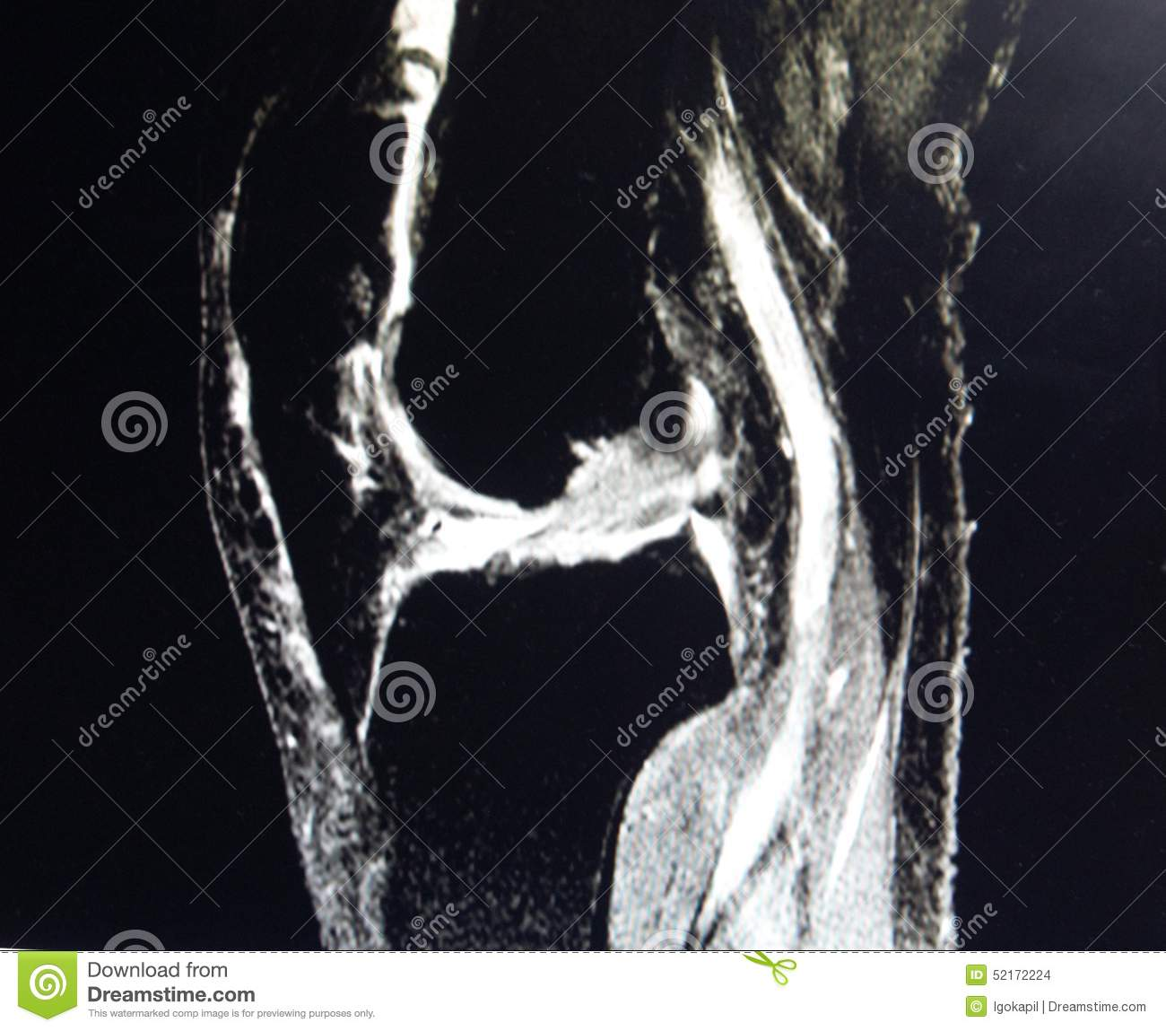 Mri knee large joint effusion with synovitis pathology stock photo mri knee large joint effusion with synovitis pathology stock photo image of infection knee 52172224 ccuart Images