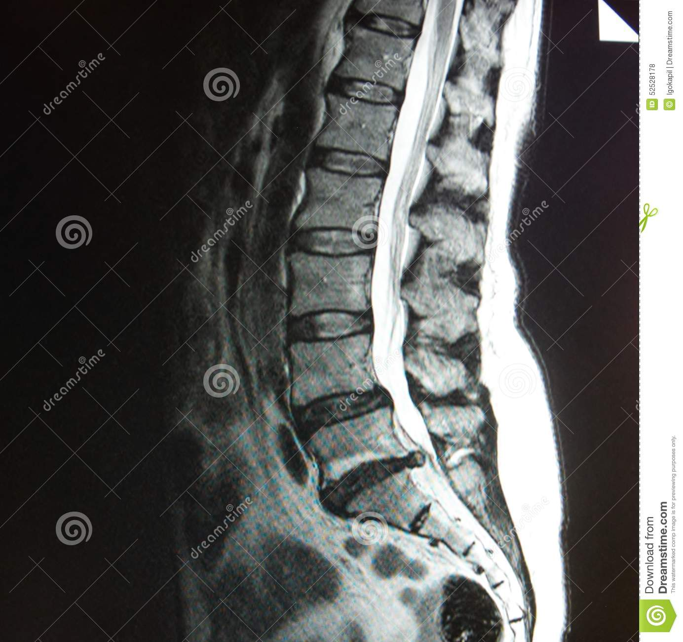Mri Of Lumbar Spine Stenosis Stock Photo - Image of diagnostic ...