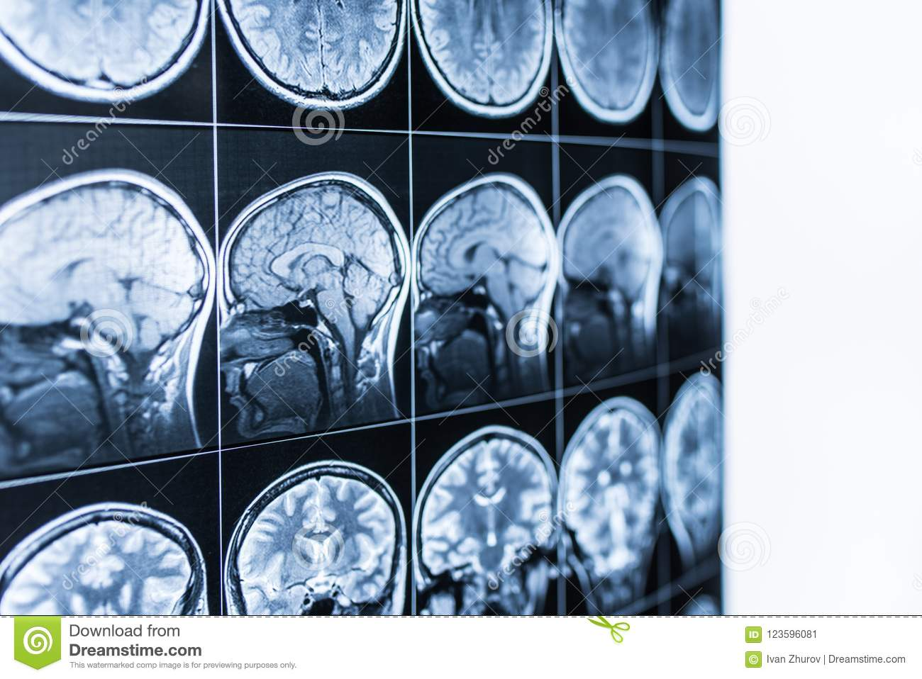 MRI scan of the head and brain of a person in the defocus