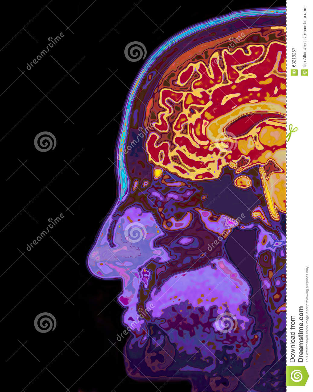 MRI Scan Of Head Showing Brain