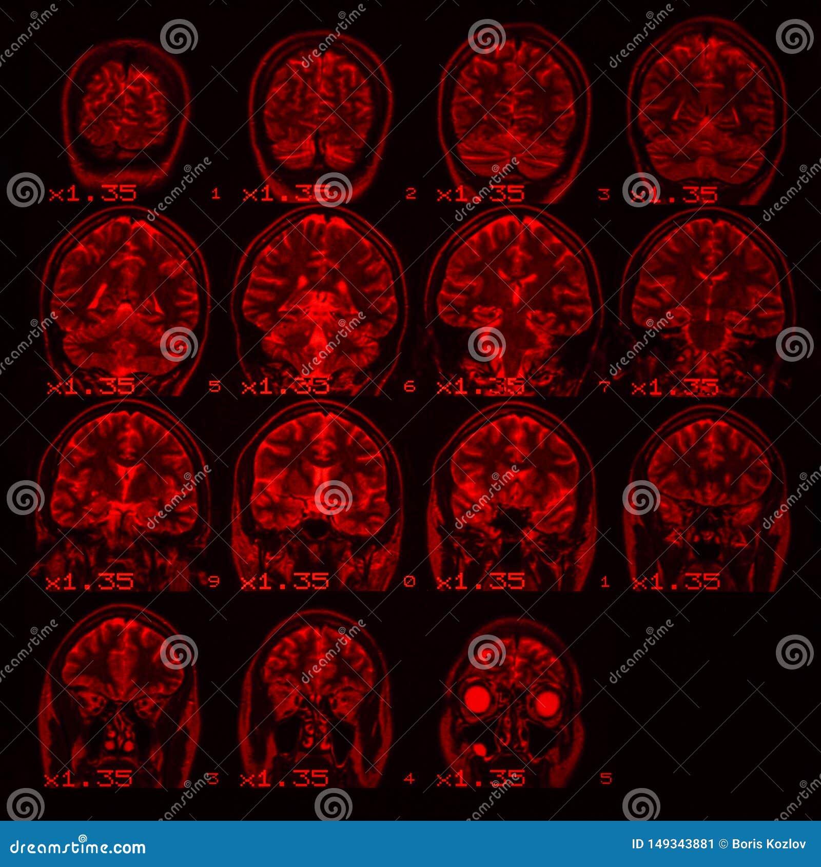 MRI van de hersenen op een zwarte achtergrond met rode backlight