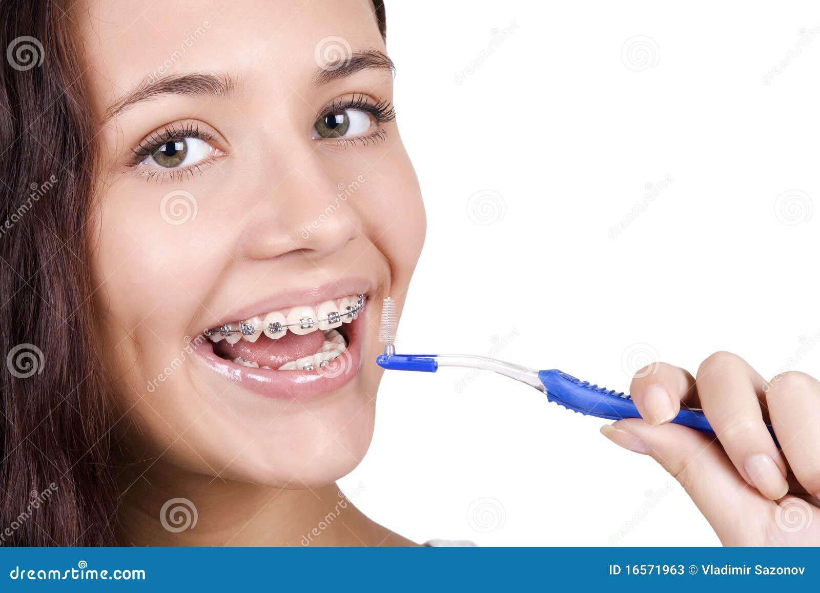 Muchacha con las paréntesis que aplican sus dientes con brocha