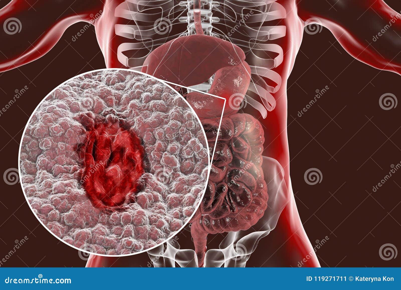 Mucosa Del Estómago Con La úlcera Péptica Stock de ilustración ...