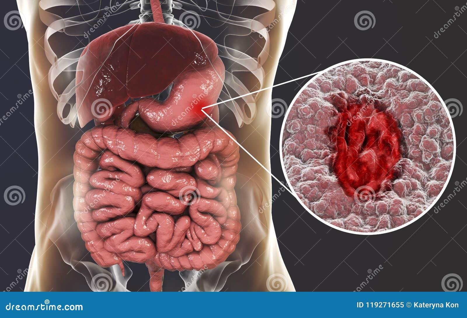 Mucosa van maag met maagzweer