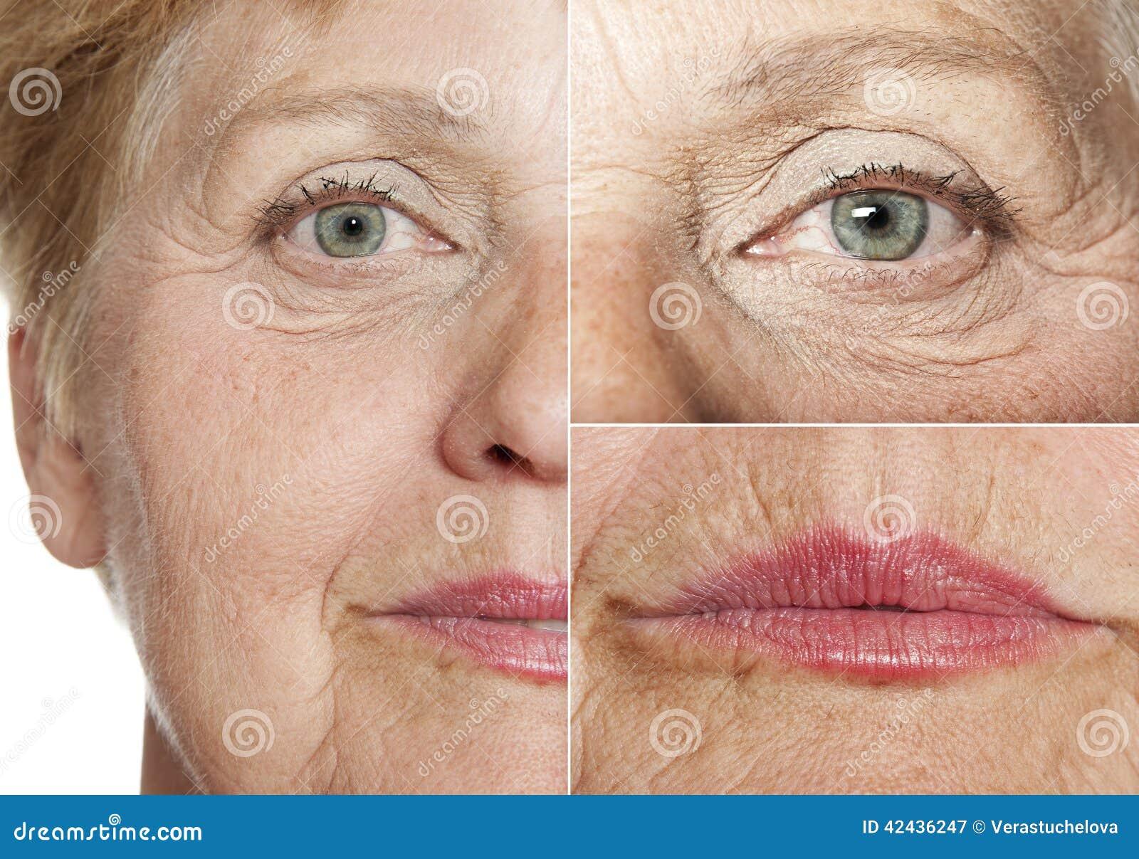 Mujer (67 años)