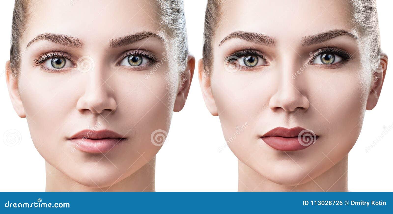 Mujer con acné antes y después del maquillaje