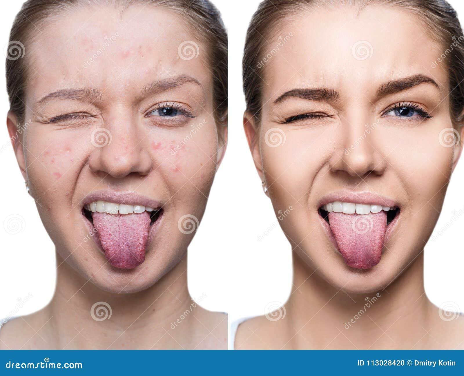 Mujer con acné antes y después del tratamiento y del maquillaje