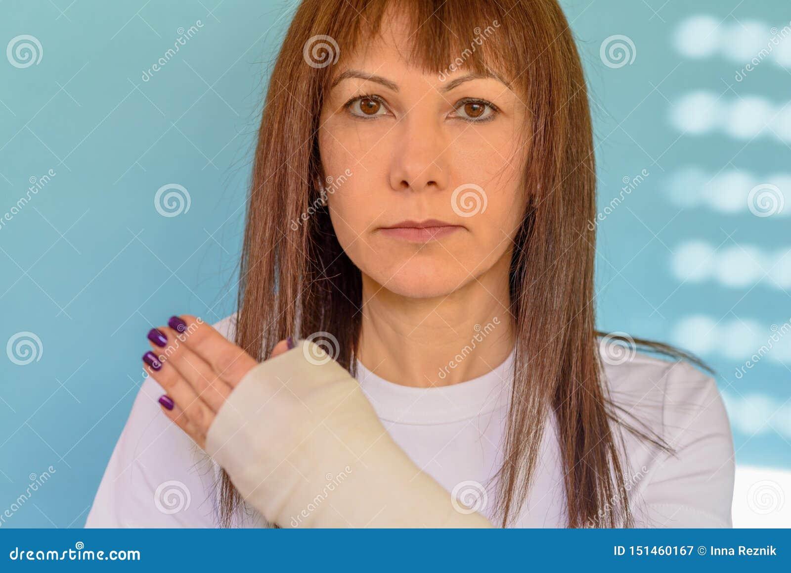 Mujer con el hueso de brazo quebrado en el molde, mano enyesada en fondo azul