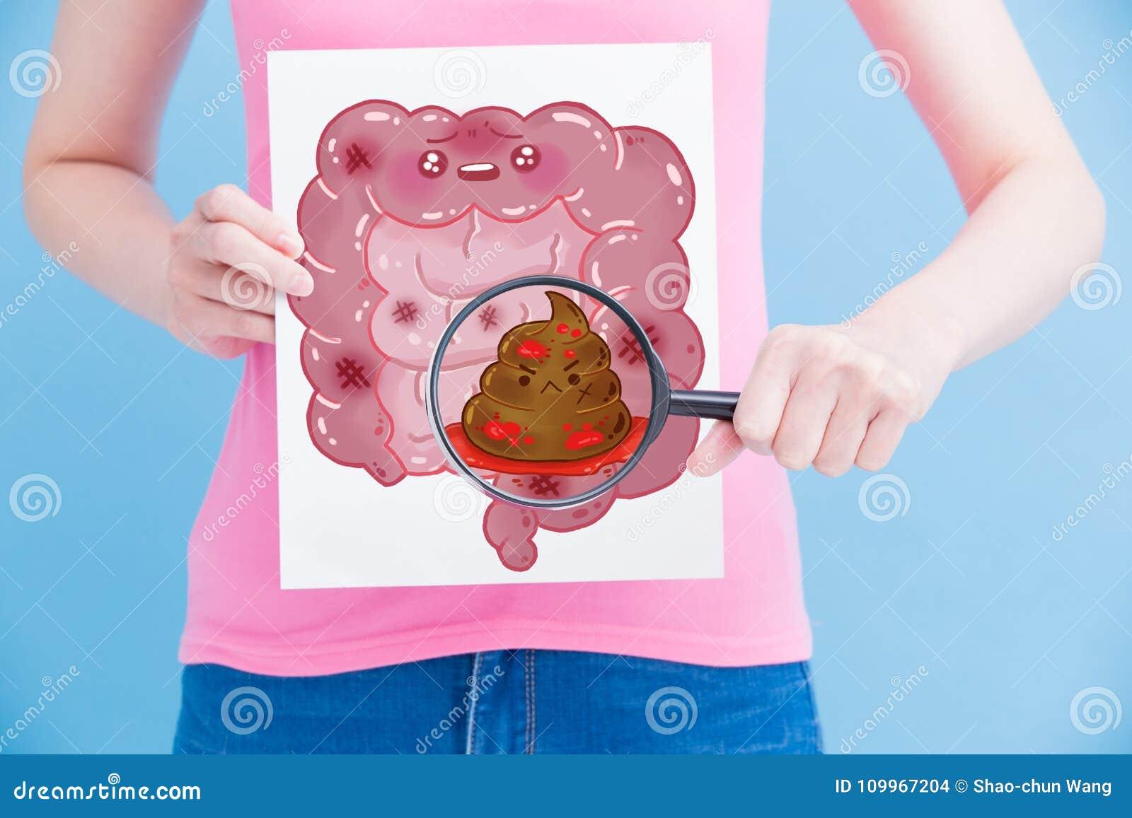 Mujer con el intestino del unhealth