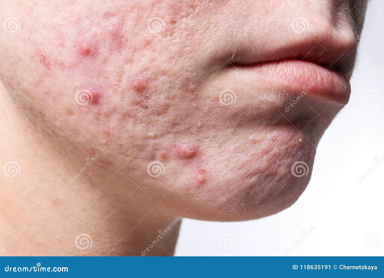 Mujer joven con acné en su cara