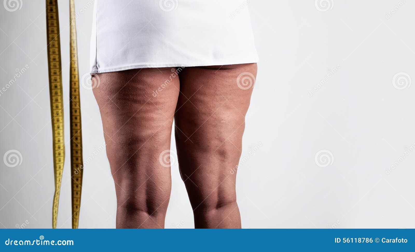 Mujer joven con celulitis