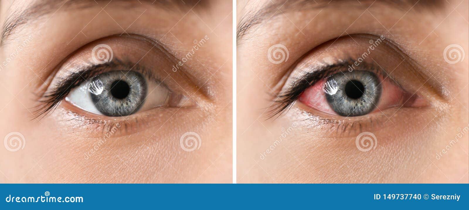 Mujer joven con los ojos hermosos, primer