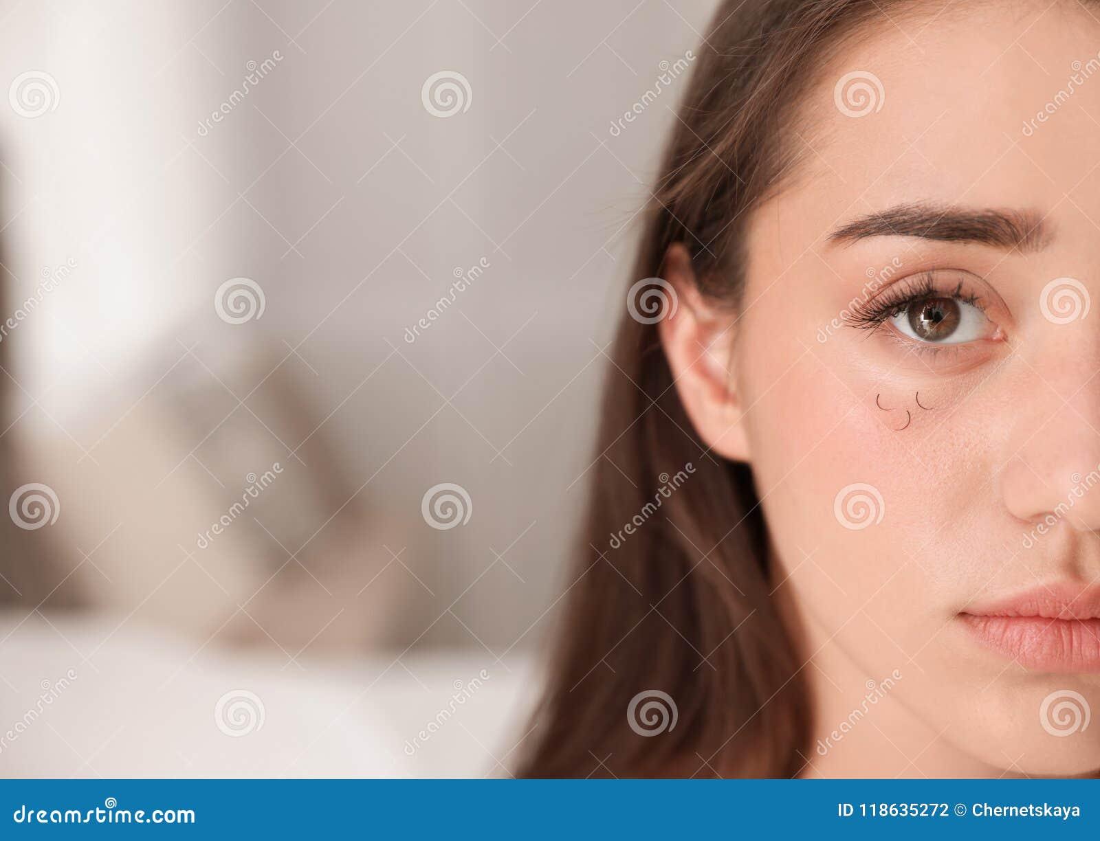 Mujer joven con problema de la pérdida de la pestaña